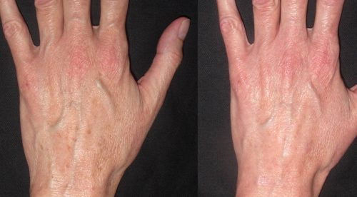 hand sun spots sm