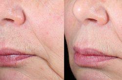upper lip hair close